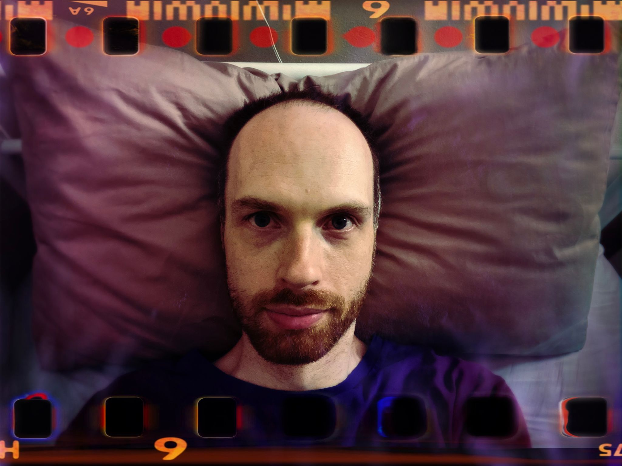 A photo of me, a white man with a short red beard and large expanse of forehead, lying on a pillow. The photo looks like film complete with holes at the top and bottom where the film would be pulled along by the loader.