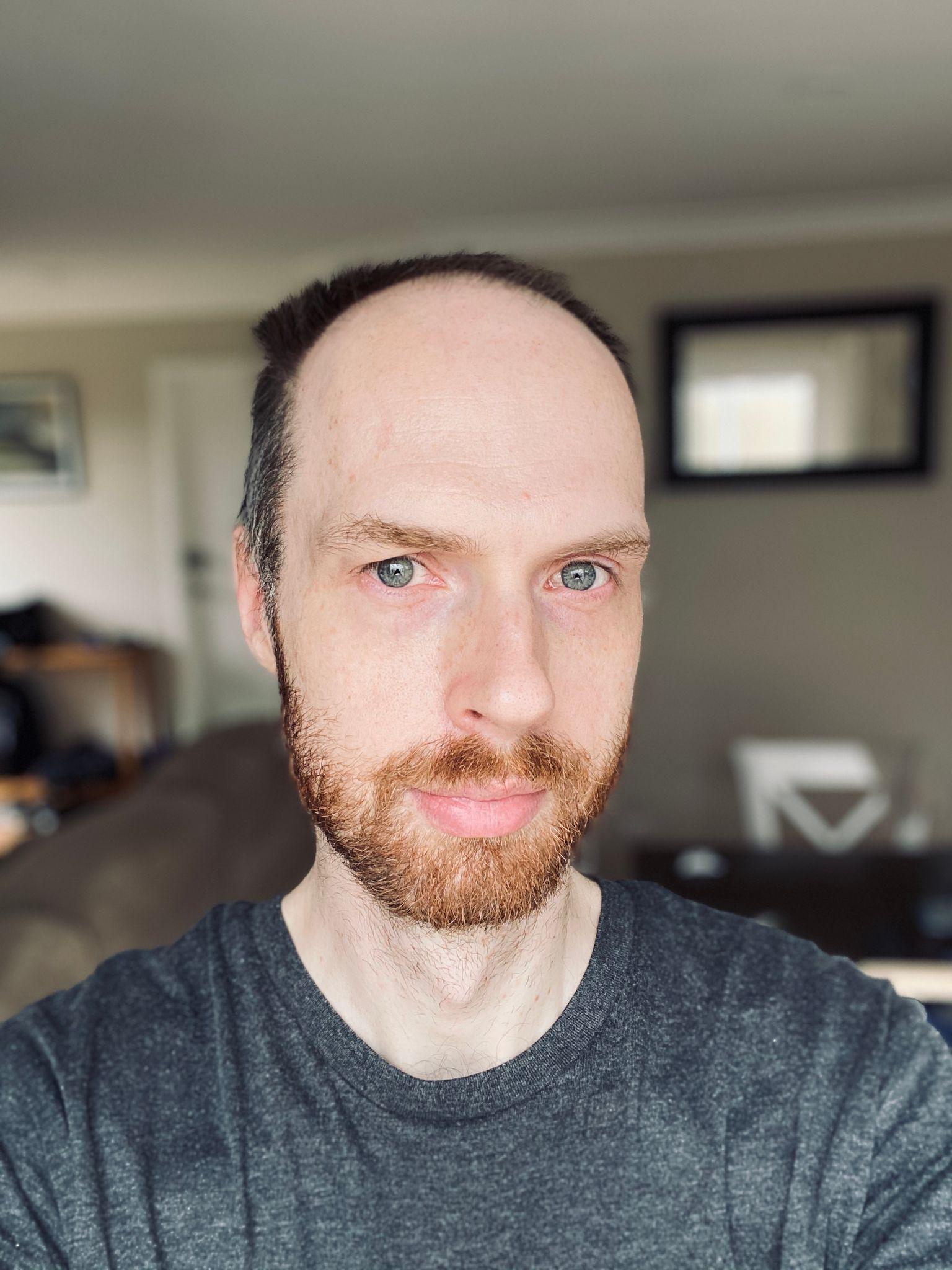 A selfie of me, a white man with a short but in-obvious-need-of-trim red beard and short hair that's also in need of a shave because it's starting to poke up at stupid angles.