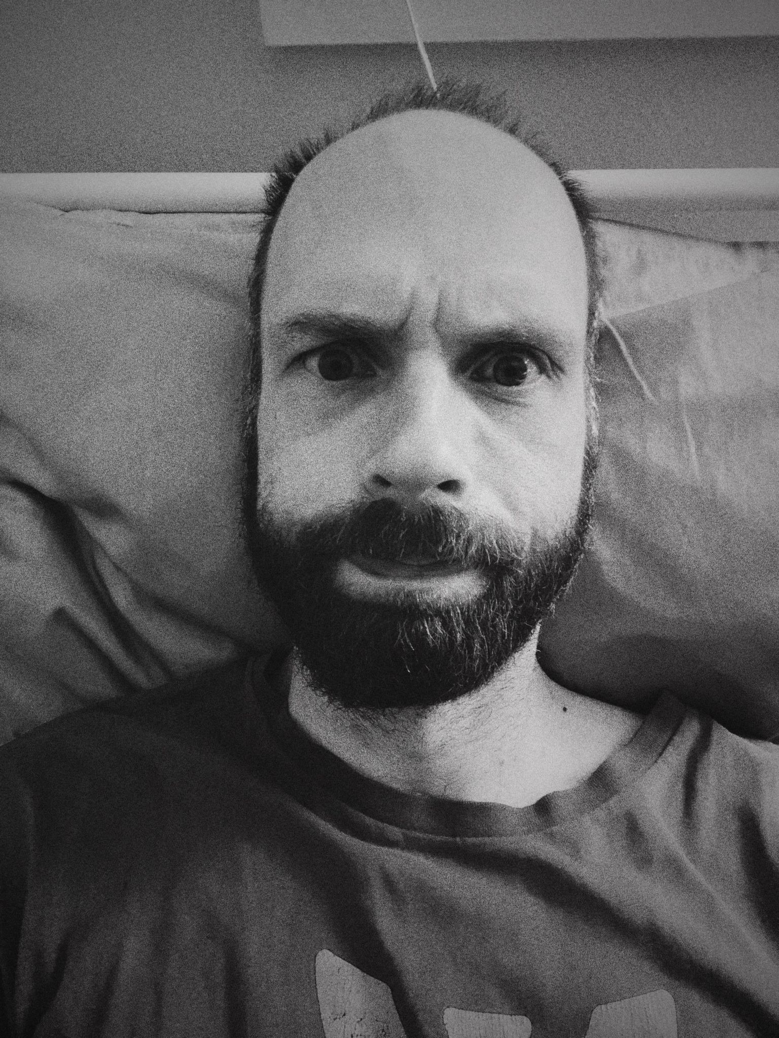 A black and white photo of me, a white man with a getting-increasingly-bushier beard, lying on a pillow with my eyebrows furrowed and my lips pursed.